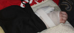 Splinted broken wrist with ice pack